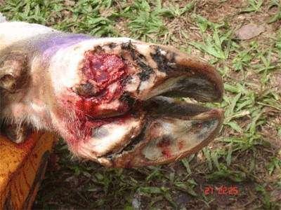 úlcera de talão
